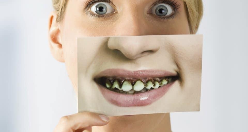 Ugly-teeth-no-job