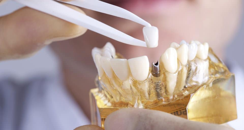 Do extracted teeth need to be replaced?