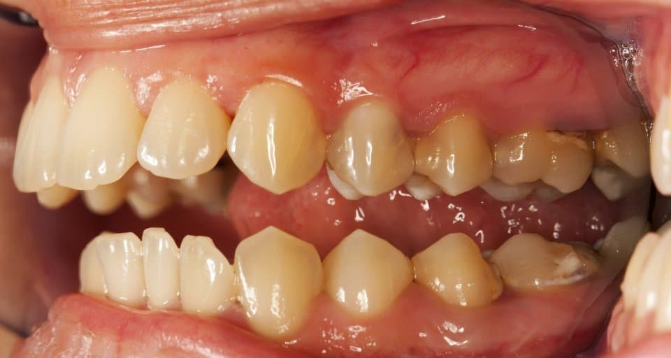 What causes teeth to yellow?