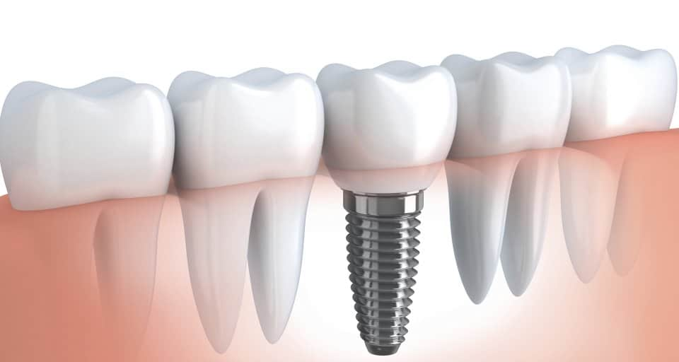 Dental Implants 101