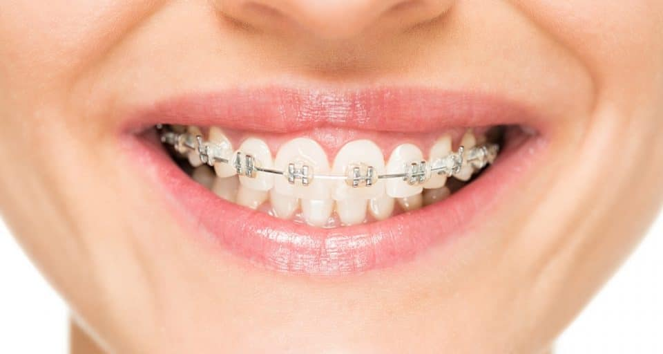 woman smiling with braces