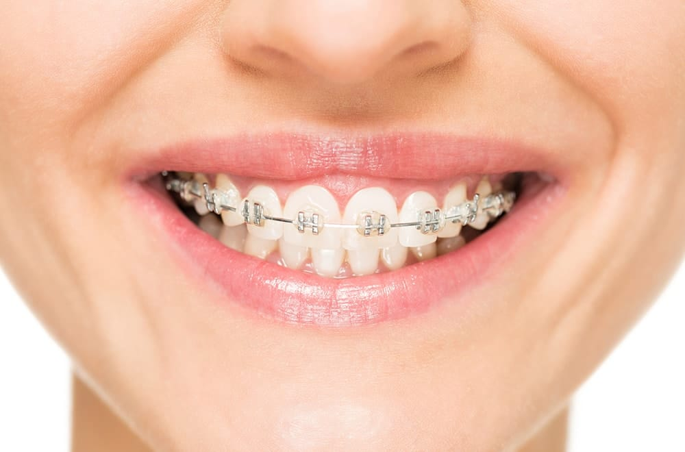 Does Aetna Cover Braces for Adults? | Aetna Dental Offers